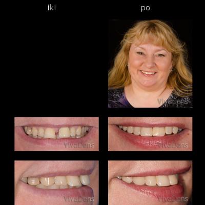 Greita estetinė ortodontija ir estetinis protezavimas ant implantų